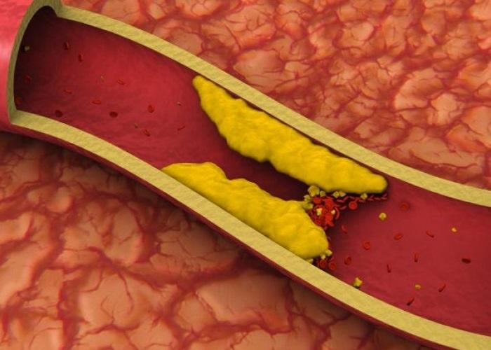Vena obstruida con colesterol