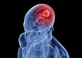 Relación entre el ejercicio físico y la memoria