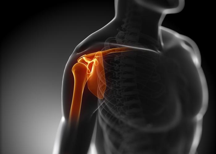 Radiografía del hombro