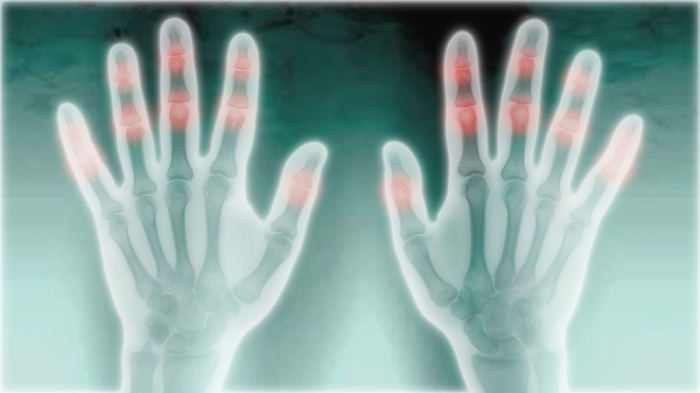 Radiografía de dos manos