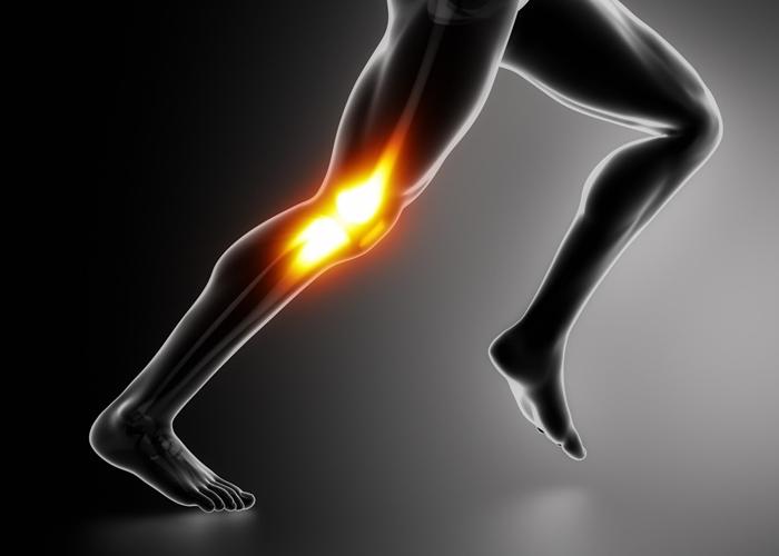Rodilla de corredor lesionado