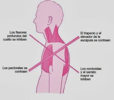Síndrome cruzado, qué es y cómo prevenirlo