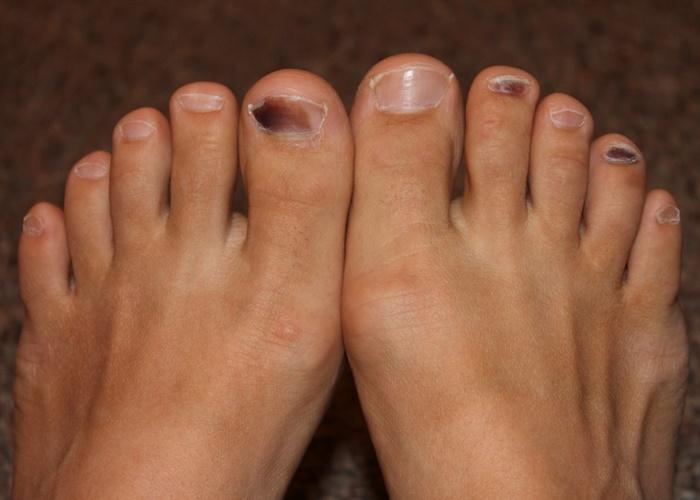 Cómo evitar las uñas negras y las ampollas al correr?
