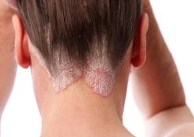 mujer-con-psoriasis-en-cuero-cabelludo