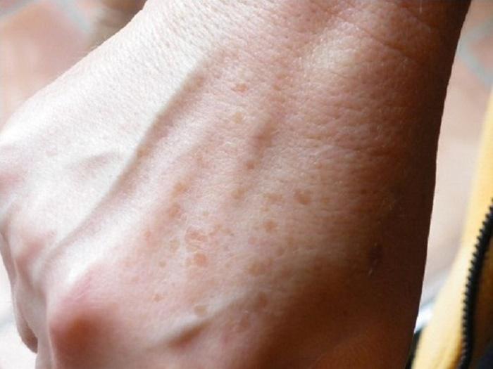 Manchas oscuras de las manos