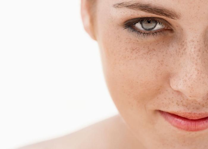 Tratamientos manchas piel