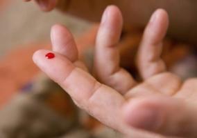 Dedo con sangre