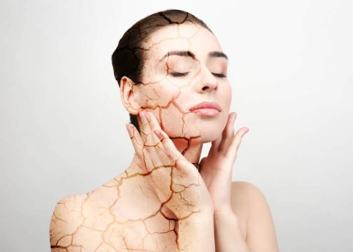Mujer piel seca