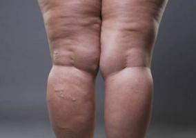 Persona piernas hinchadas
