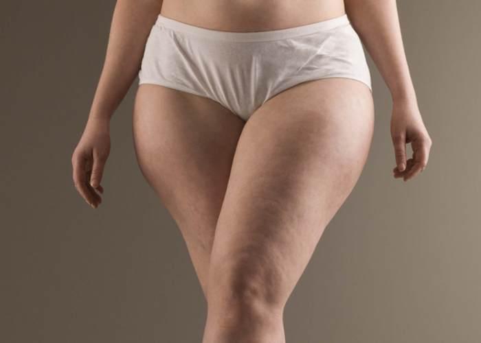 Cuerpo de mujer con celulitis