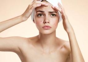 Mujer granos piel
