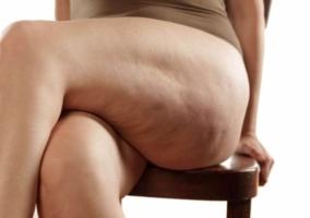 Mujer sentada con celulitis