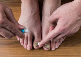 Persona colocándose pomada en las uñas